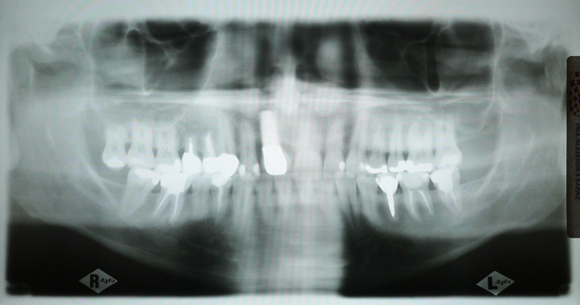 X-ray of my teeth. Puzzle Picture: Find the healthy tooth!